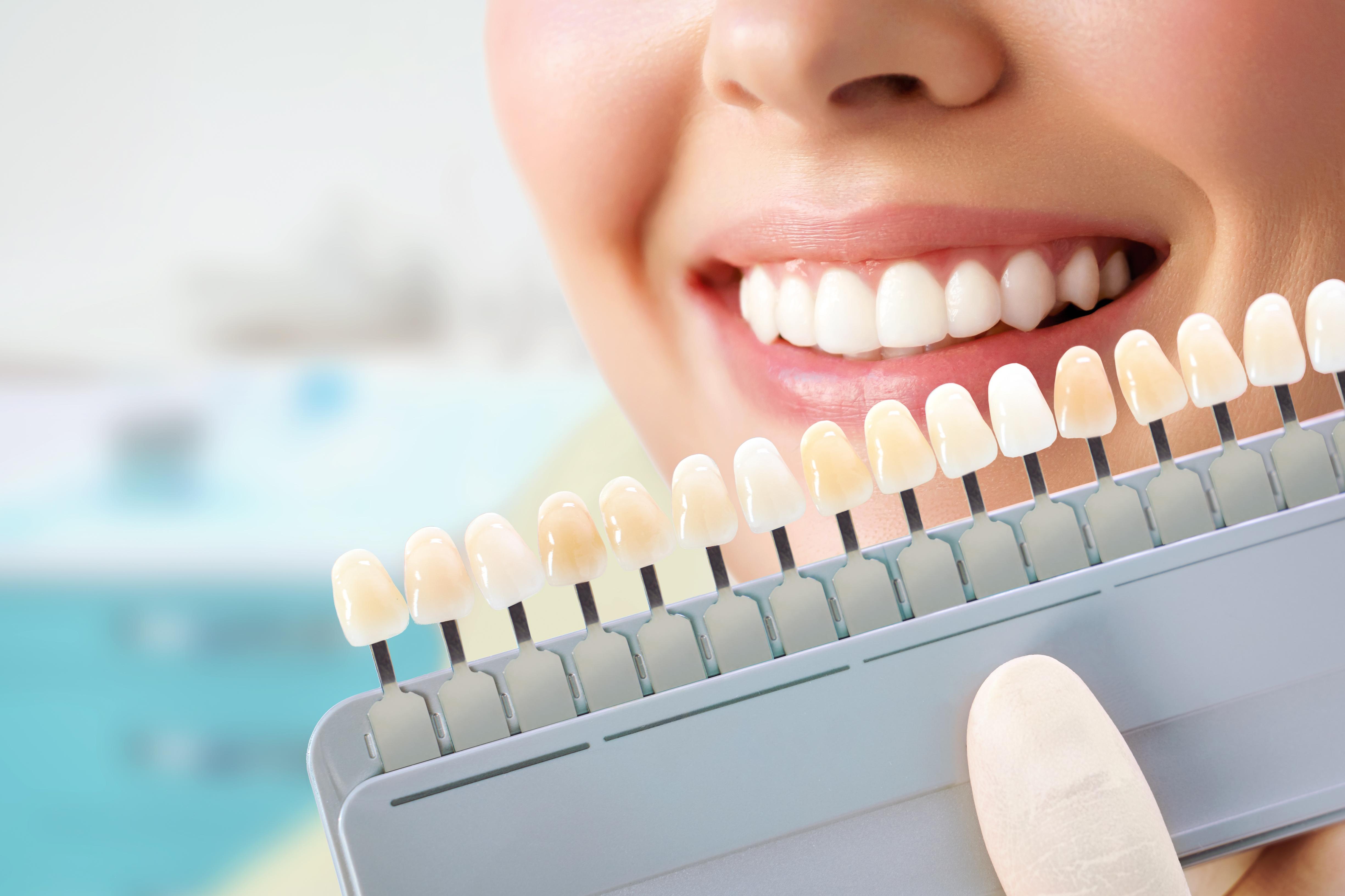 Odontoiatria estetica: che cos'è?